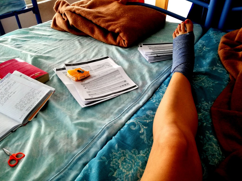swollen_leg_covered_with_a_blue_elastic_band